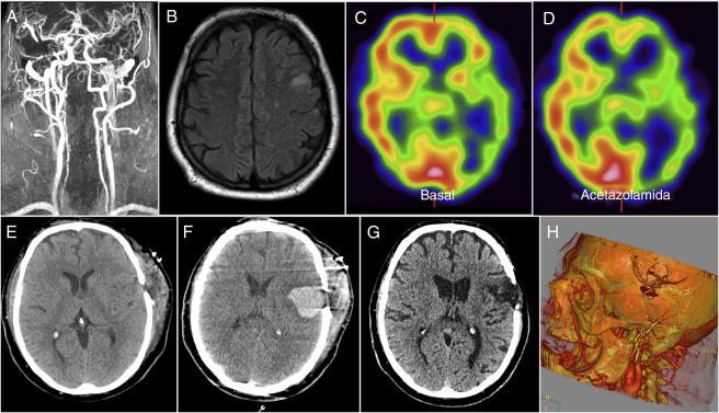 Microvascular isquémica crónicas radiología