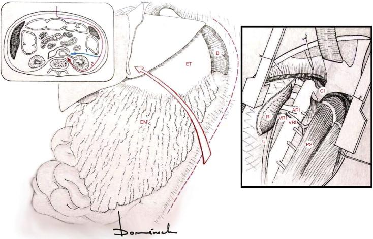 Abordajes quirúrgicos de aorta: visión práctica para residentes ...