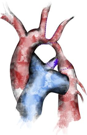 Manejo del neonato con coartación de aorta e hipoplasia de arco ...