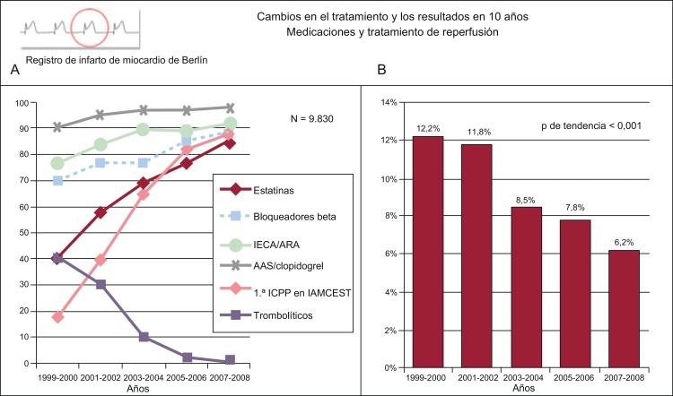 Icd ecocardiograma para de 10 Código informe