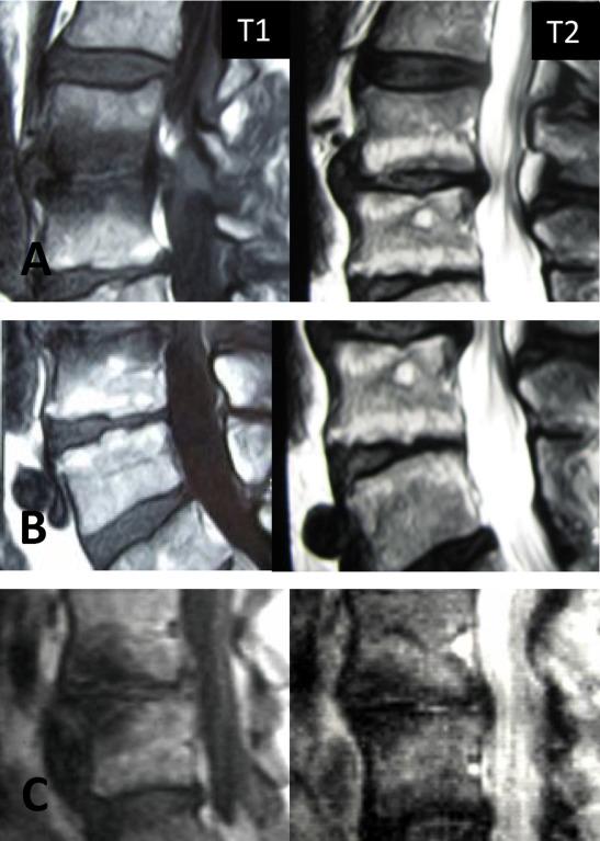 Traitements intra discaux des discopathies actives