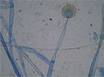 Zygomycosis conventional laboratory diagnosis sciencedirect microscopic feature of mucor sp in culture lactophenol cotton blue staining shows a globose intact sporangium with sporangiospores and branched ccuart Image collections
