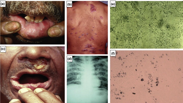Clinical manifestations and laboratory features of paracoccidioidomycosis in ...