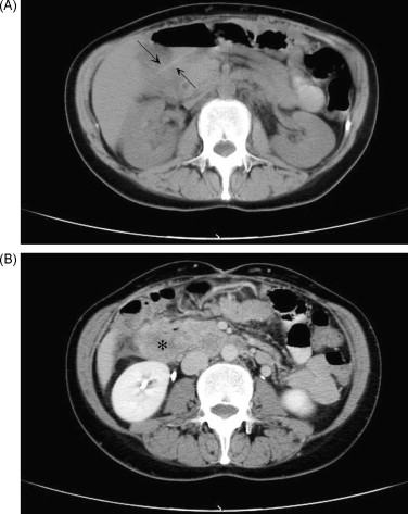 Intra-abdominal abscess caused by toothpick injury