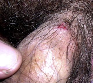 Herpes på pennis