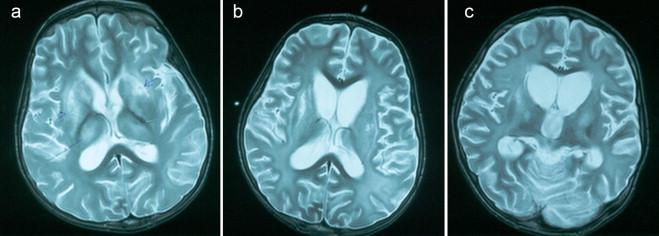 encephalitikus hipertónia
