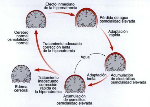 Acumulación de csf en el cerebro