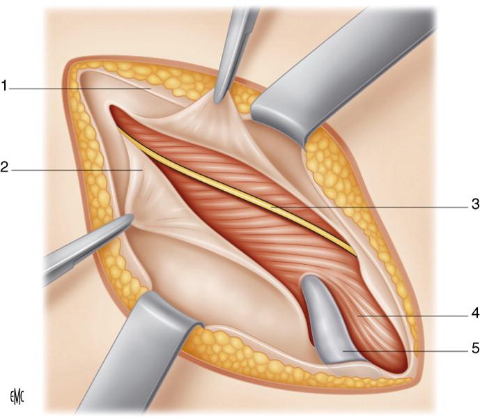orquiectomía de erección bilateral