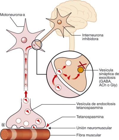 Diagnostico de tetano neonatal