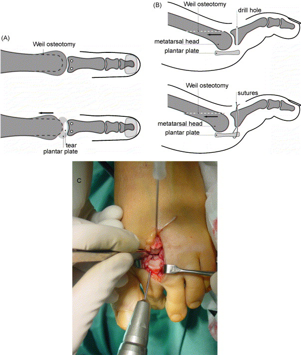 Plantar plate repair and Weil osteotomy for metatarsophalangeal ...