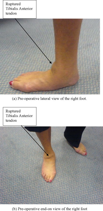 Traumatic Rupture Of The Tibialis Anterior Tendon Associated