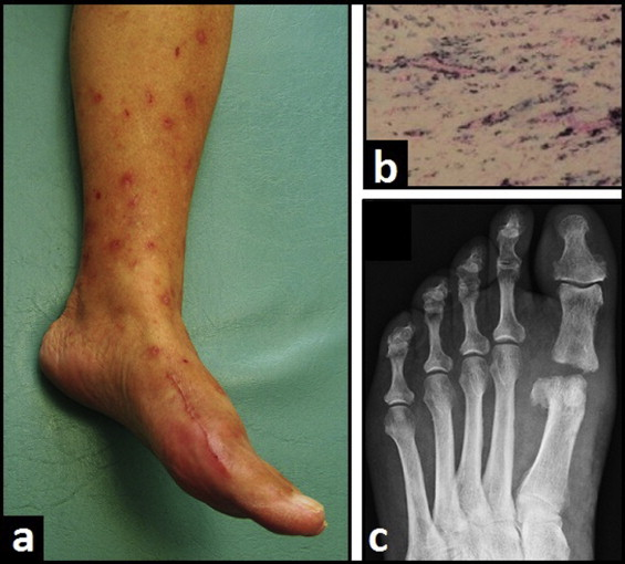 Metal allergy after first metatarsophalangeal total joint