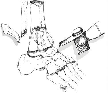 Tibiotalocalcaneal Arthrodesis With Distal Tibial Allograft For