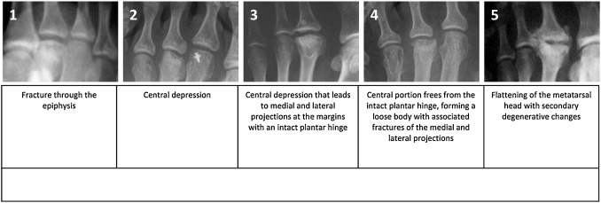 Joint Debridement And Microfracture For Treatment Late Stage