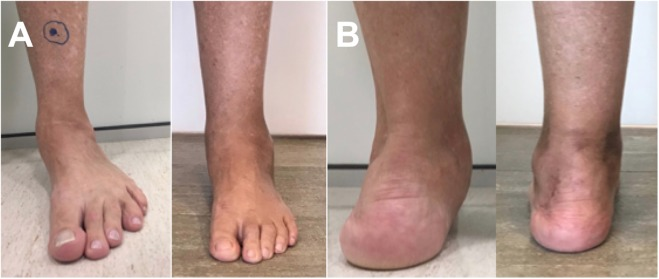 Dynamic correction for forefoot varus in stage II-A adult flatfoot