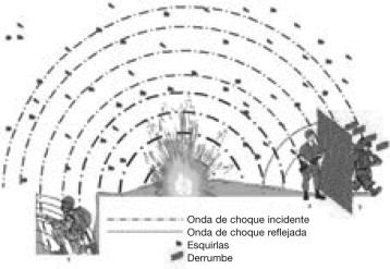 Lesiones Por Onda Expansiva Blast Y Heridas Por Explosión Sciencedirect