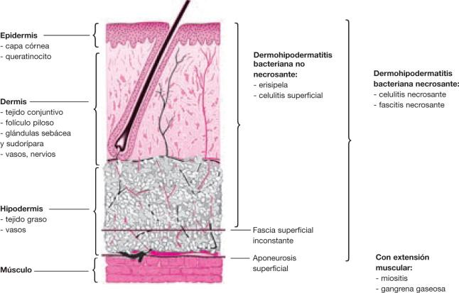 infeccion de orina y celulitis