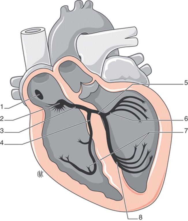 Trastornos perioperatorios del ritmo cardíaco - ScienceDirect