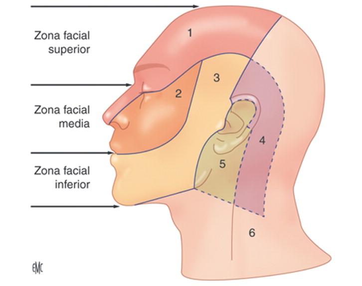 Bloqueos faciales - ScienceDirect