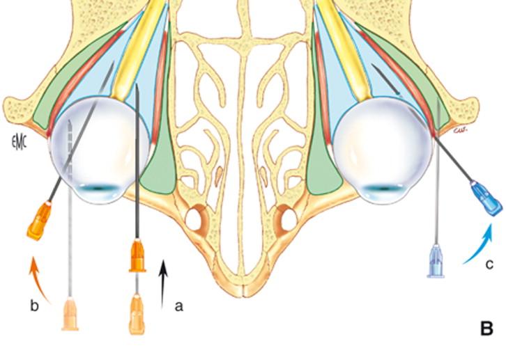 Inyecciones de subtenon complicaciones de la hipertensión