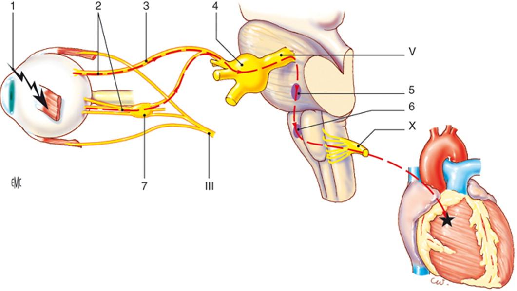 Escisión de las complicaciones de la hipertensión en la glándula submandibular