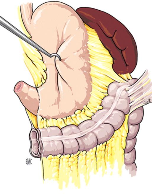 Anatomía quirúrgica del colon - ScienceDirect