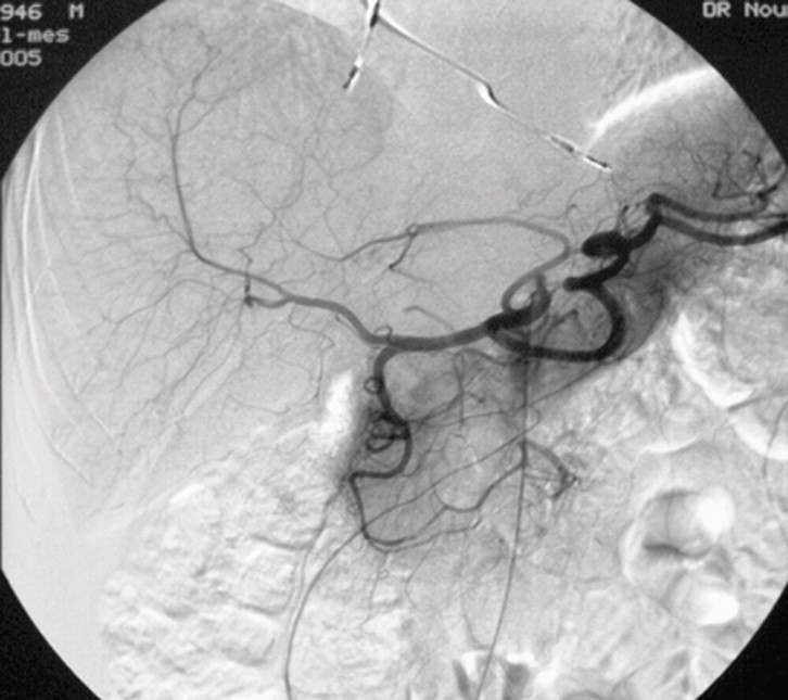 Anatomía del hígado y de las vías biliares - ScienceDirect