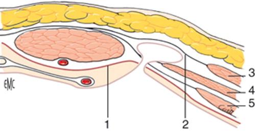 Tratamiento quirúrgico de las hernias de Spiegel - ScienceDirect