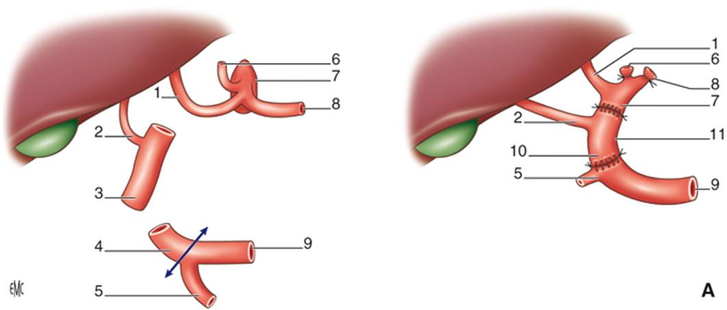 Reconstrucción vascular y trasplante hepático - ScienceDirect