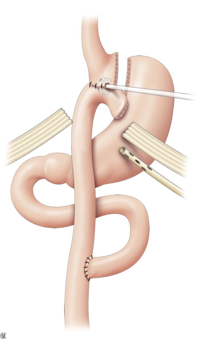 Tratamiento quirúrgico de las complicaciones de la cirugía ...