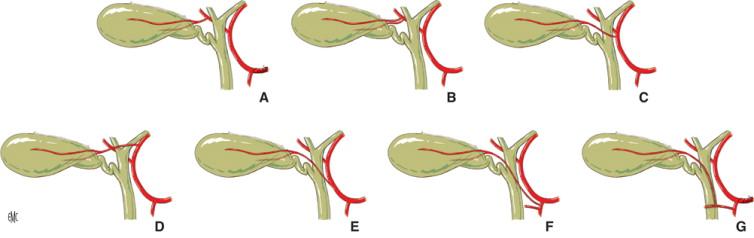 Anatomía quirúrgica de las vías biliares extrahepáticas y de la ...