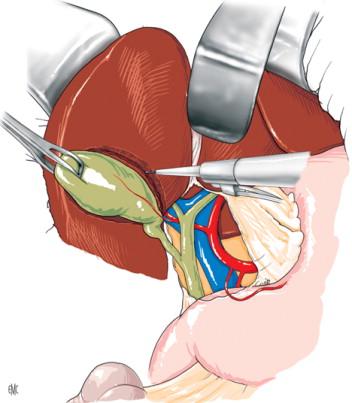 Cáncer de la vesícula biliar. Técnica quirúrgica - ScienceDirect