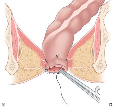 dolore perineale o o connor