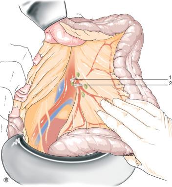 la grasa visceral puede empujar la próstata