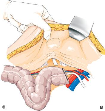 Fístula coccígea sagrada y próstata