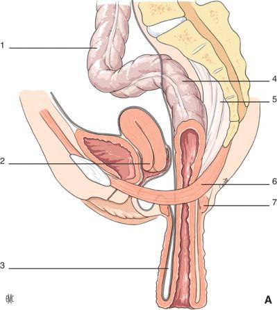 disfunzione erettile dopo resezione anteriore bassa