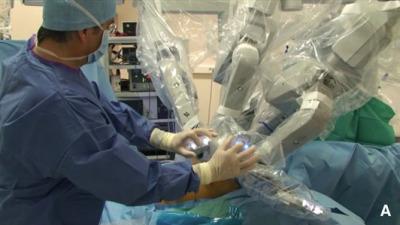 video intervento prostata con robot da vinci full