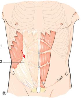 diagramma inguinale maschio