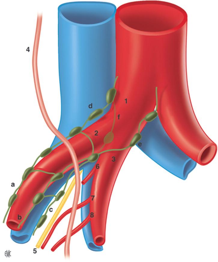 Linfadenectomía pélvica mediante laparotomía - ScienceDirect
