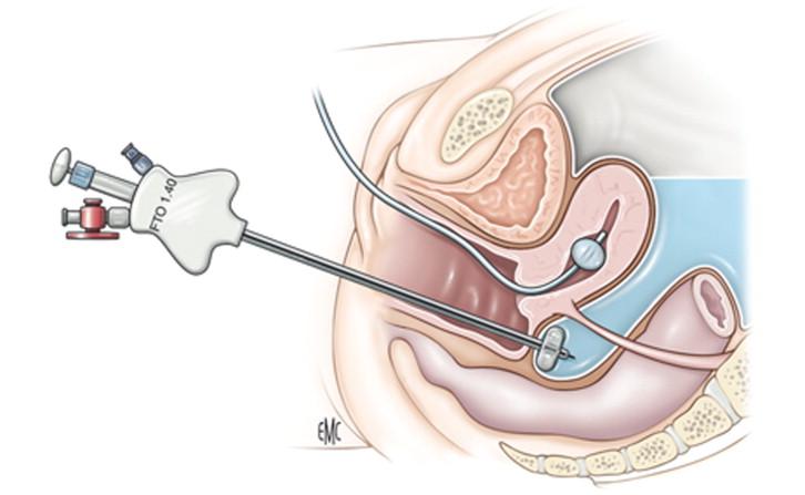 Fertiloscopia (hidrolaparoscopia transvaginal) - ScienceDirect
