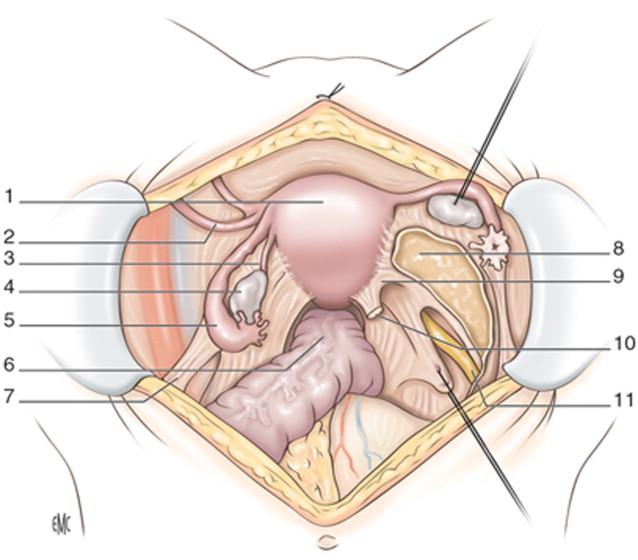 Histerectomía por vía abdominal por lesiones benignas - ScienceDirect