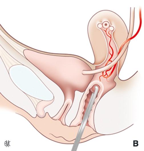 Histerectomía vaginal por patología benigna - ScienceDirect