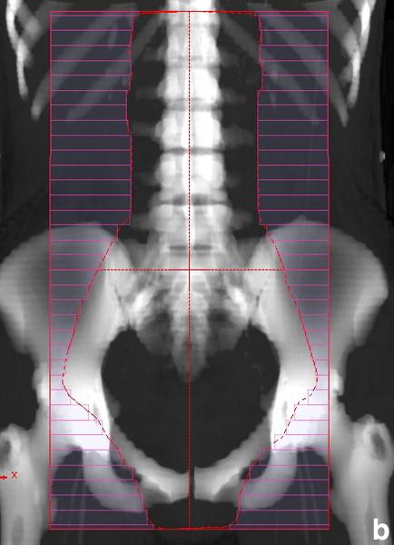 Tratamiento de los cánceres del cuello uterino de estadios III y IV ...