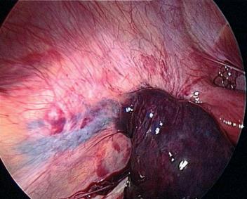quiste ovario hemorragico pdf
