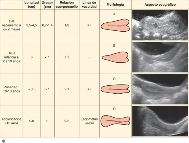 agenesia uterina del ovario
