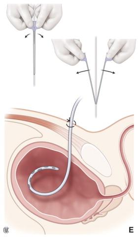 difficoltà a urinare valve