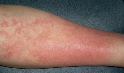 infezioni della pelle suppurative
