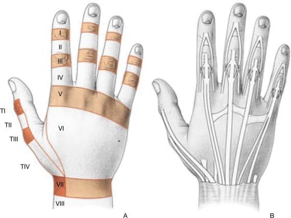 Lesiones traumáticas de los tendones extensores de la mano ...