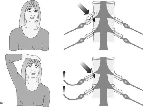 Neuralgia occipital y pérdida de memoria