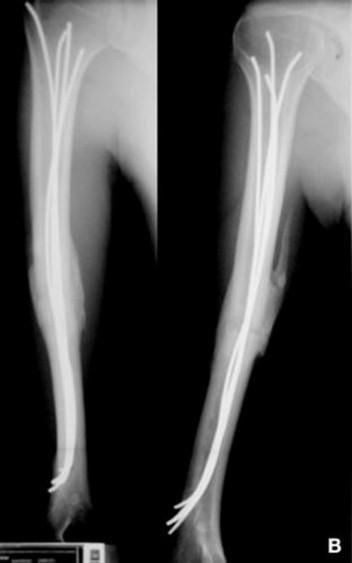Fracturas diafisarias del adulto (excluidas las fracturas ...